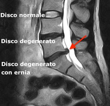 Degenerazione del disco lombare con ernia.
