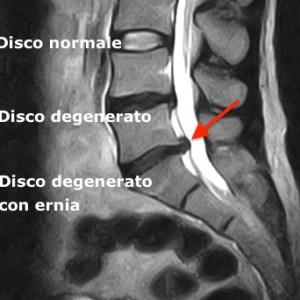 DISCHI DEGENERATI Anneriti (= disidratazione ) ed abbassati. Il disco inferiore presenta una franca ernia (freccia rossa)