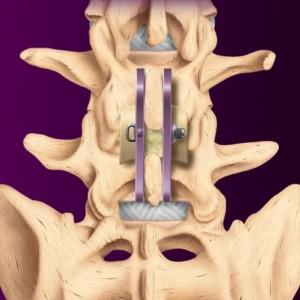 Stabilizzazione interspinosa.Placchette in titanio fissate ai due lai delle apofisi spinose. Osso autologo tra le apofisi spinose