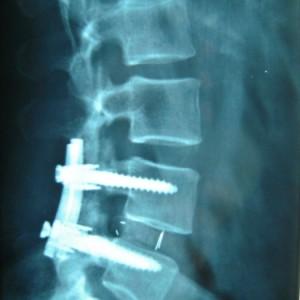 Stabilizzazione (o artrodesi) intersomatica on cage (gabbietta) riempita d'osso tra i corpi vertebrali e viti transpeduncolari