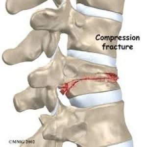 Frattura vertebrale da schiacciamento o compressione