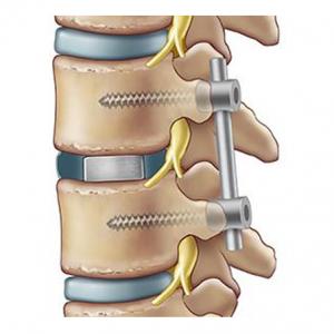 Stabilizzazione posteriore