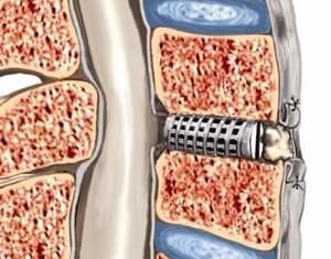 Dove maneggiare il mal di schiena affilato